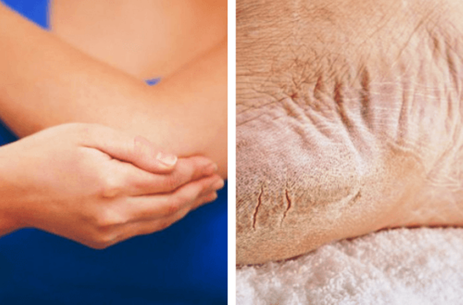 Heal Dry Elbows and Feet in Just 1 Week