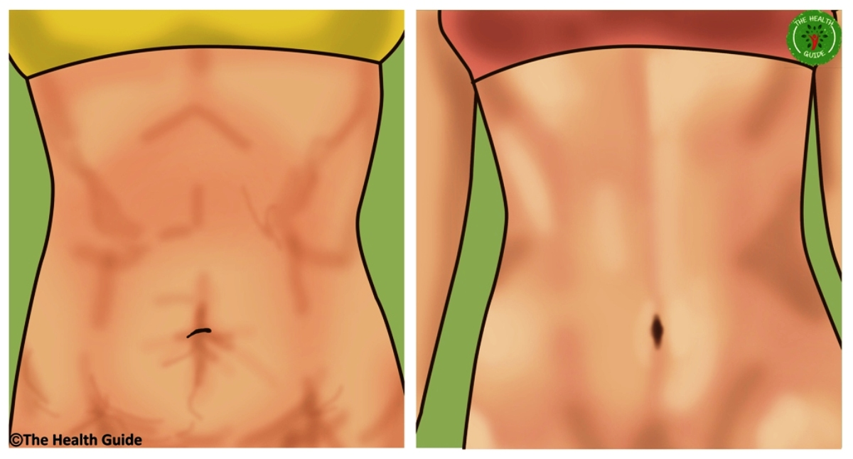 Tighten Your Loose, Saggy Skin With These Efficient, Natural, Home Remedies