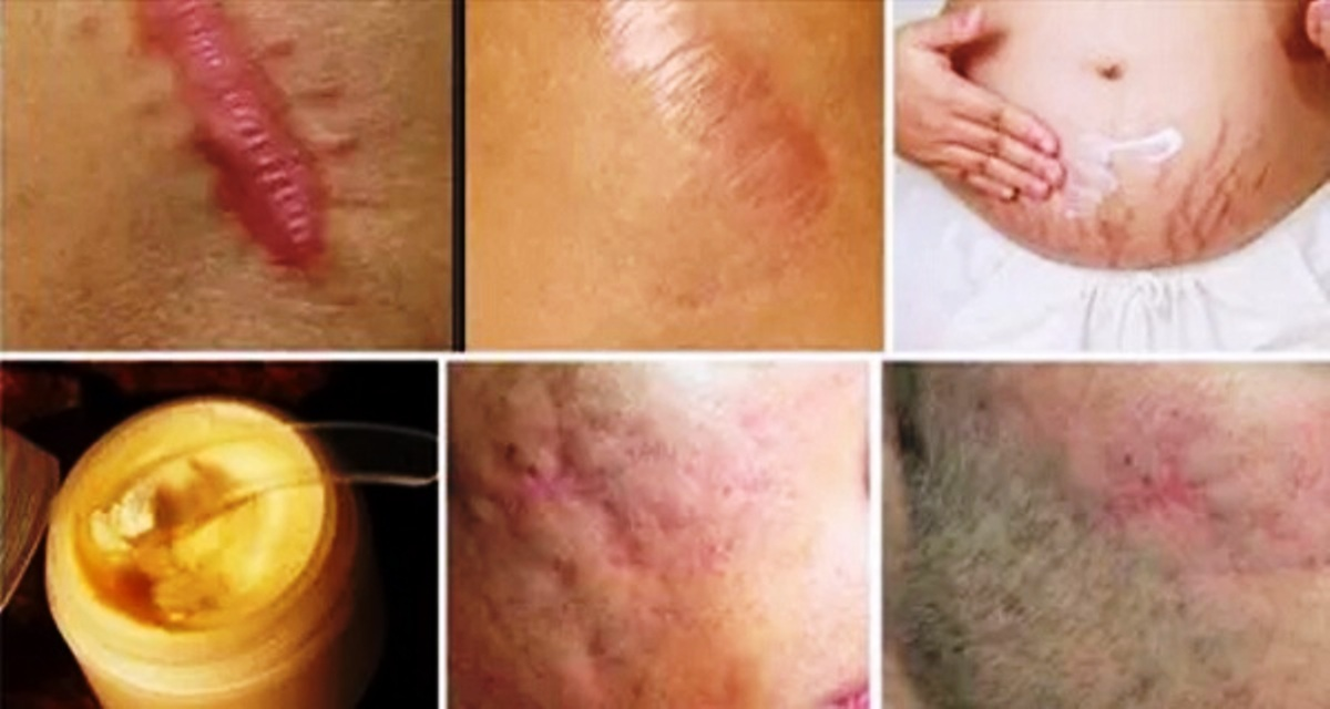 Remove Any Scar Off Your Body In Less Than A Month