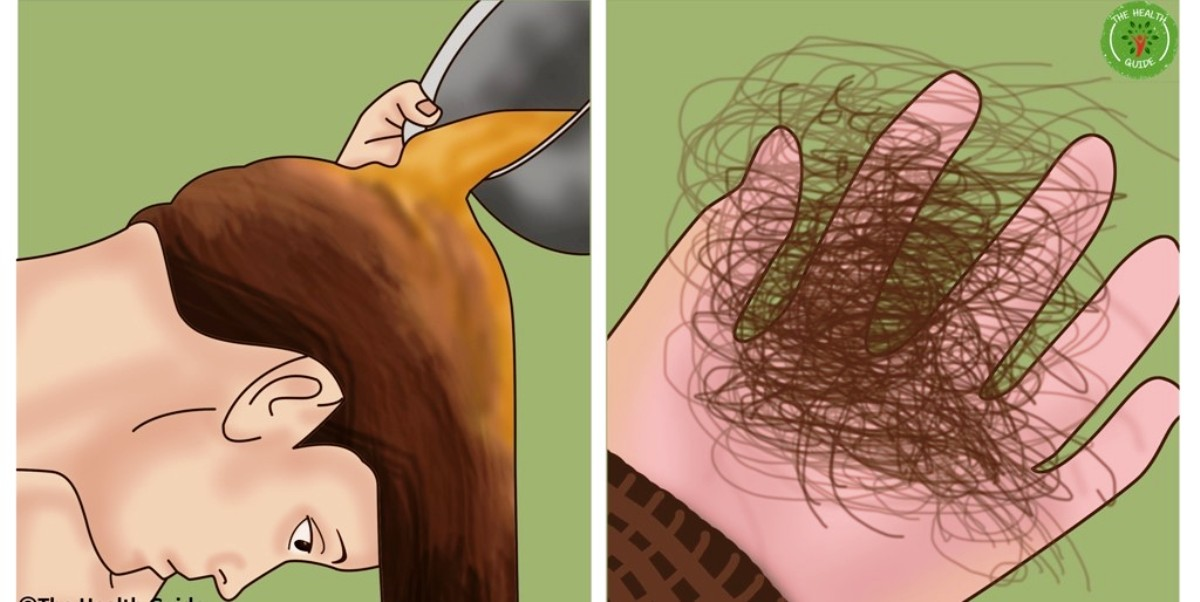 Stop Hair Loss Naturally! Simple And Easy To Make Solution For Strong And Thick Hair