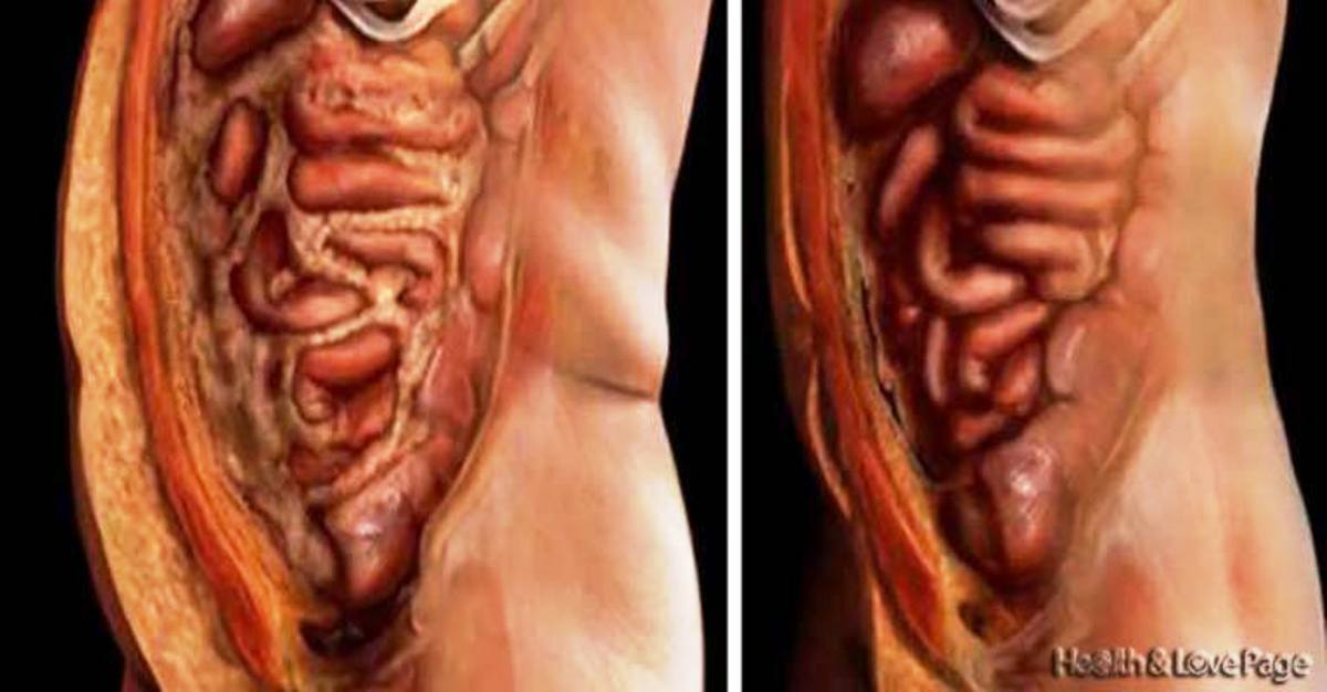 Empty All Deposits Of Fat And Parasites Of Your Body Without Effort With This 2-Ingredient Natural Solution