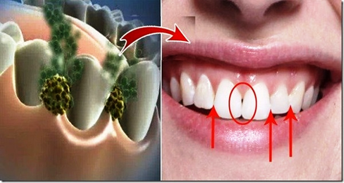 Get Rid Of Bad Breath In Just 5 Minutes! This Natural Remedy Will Destroy All The Bacteria That Cause Bad Breath