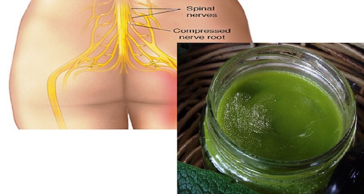 Remove Back And Sciatica Pain Easy And Naturally With This Amazing Herb